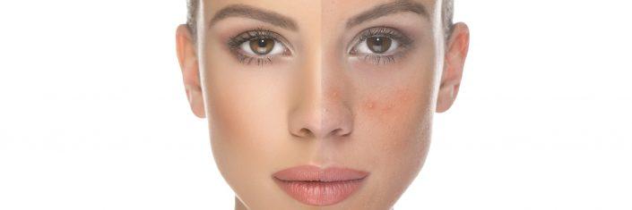 Saiba tudo sobre a acne
