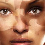 O que é vitiligo?