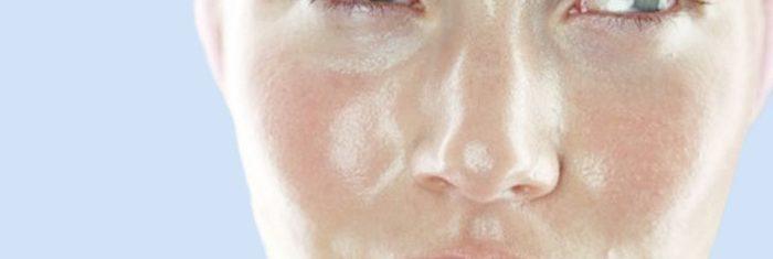 Mulher com pele oleosa | Como cuidar da pele oleosa