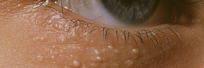 Mulher com milium embaixo dos olhos | O que é milium?