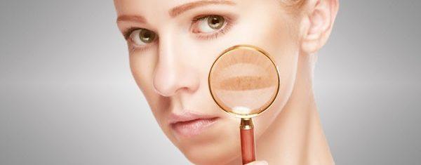 Mulher com lupa no rosto indicando manchas | O que é melasma?